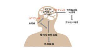 アルツハイマーと歯周病の関係性